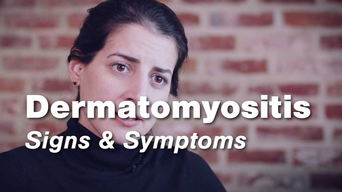 Signs and Symptoms of Dermatomyositis