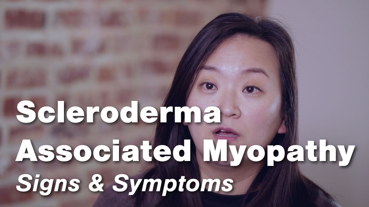 Signs & Symptoms of Scleroderma Associated Myopathy
